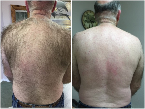 Back sugaring before and after